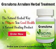 Website at https://www.naturalherbsclinic.com/Granuloma-Annulare.php