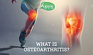 What is Osteoarthritis, Symptoms & Treatment | Best Physiotherapist in Delhi