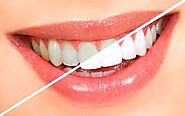 Teeth Whitening Services in Vasant Vihar - freeprachar.com
