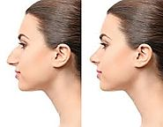 Website at https://www.skncosmetics.com/cosmetic-surgery/rhinoplasty-nose-surgery/