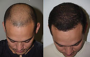 Is Hair Transplant Worth Your Time