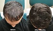 Consider PRP Treatment for hair Loss – Laserskincareae