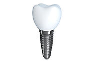 Know About Full Mouth Dental Implants