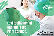 How to Choose a Dentist for Full Mouth Dental Implant treatment