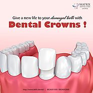 Crowning treatment at Best Dental Clinic at South Delhi - 44530928 - expatriates.com