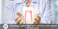 5 warning signs that you need a root canal treatment