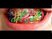 Braces Colors 2014 Model N1 !