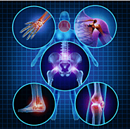 Prolotherapy & Prolozone Therapy UK - Cost & Video Reviews