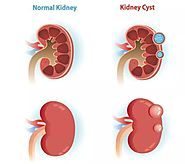 Why Do You Get Polycystic Kidney