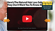 Ultra FX10 Review - Vanish Your Hair Loss Triggers!!