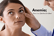Anemia; The Lack of IRON Could Kill You – Use These Natural Treatments to Get Rid of Anemia