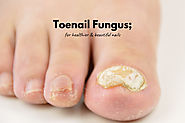 How To Cure Toenail Fungus - 5 Effective Natural Remedies