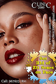 Get Rid of Zit Scars on Face - Clinic 2000