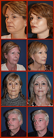Surgical procedures by Charlotte facial plastic surgeon