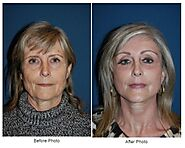 EyeLid Surgery in Charlotte NC