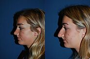 Best Charlotte rhinoplasty surgeons are ready for your nose job