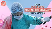 POST PREGNANCY MINI ABDOMINOPLASTY PROCEDURE (MINI TUMMY TUCK SURGERY)