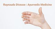 Ayurvedic Home Remedies & Medicine For Raynaud's Disease– Nirogam