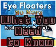 My Personal Story and Eye Floaters No More Review | Seeing Black Spots