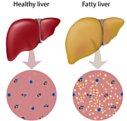 Fatty Liver: What It Is, and How to Get Rid of It