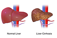 Department of Surgery - Fatty Liver Disease (Nonalcoholic Steatohepatitis)