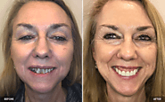 View Our Before & After Dental Treatments Gallery | Sleep Dream Smile
