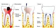 A Tooth Saving Technique | Root Canal Treatment in Noida – Site Title