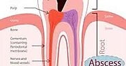 Is there is any need for Root Canal Treatment | Dentist in Noida