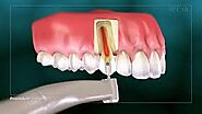 Root canal Treatment in Noida | city dental centre