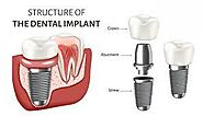 Dental Implant in India at CDC, dubai