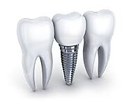Teeth Replacement Cost in India