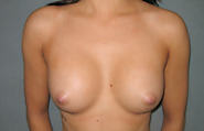 Breast augmentation Surgery in North Shore MA | Aesthetic Plastic Surgery North Shore, Beverly (MA) | Dr Anoush Hadae...
